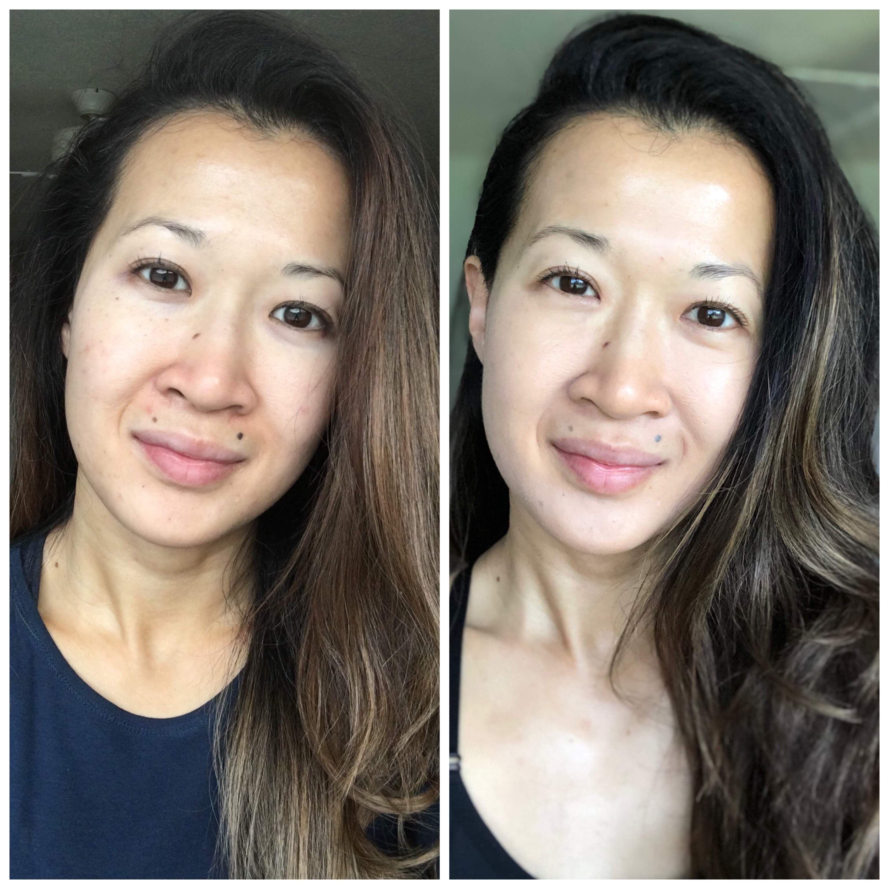How Zo Skin Health Changed My Skin In 28 Days A Beautiful Rawr
